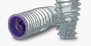 impalnty_grafiki-na-strone_implant-v3